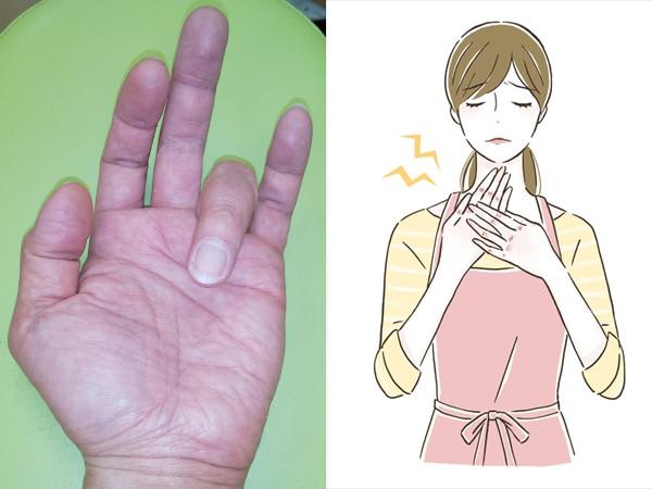 【医師監修】ばね指の原因・症状・治療法をチェック!