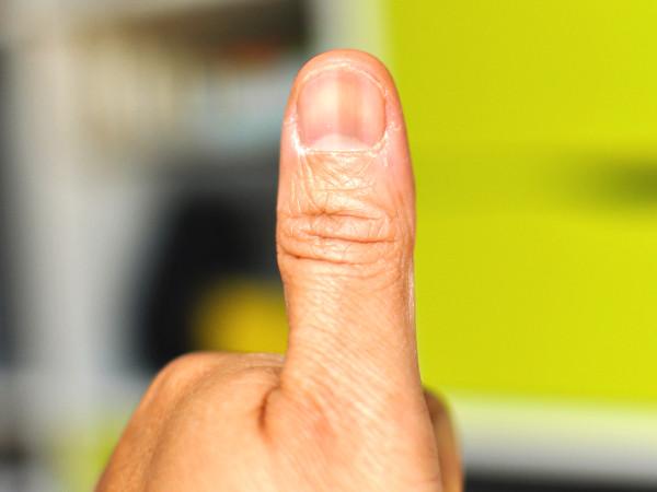 爪の黒い縦線はなぜできる?5つの原因と対処方法とは