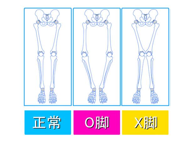 X脚矯正に効果的なストレッチと靴選び