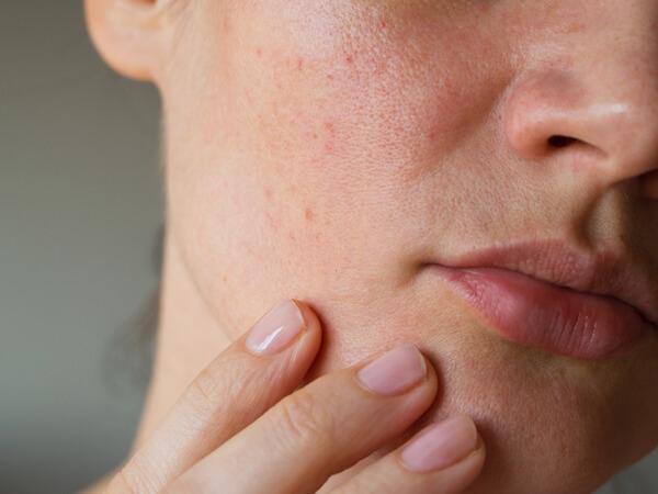 年齢肌の乾燥肌、かゆみ対策