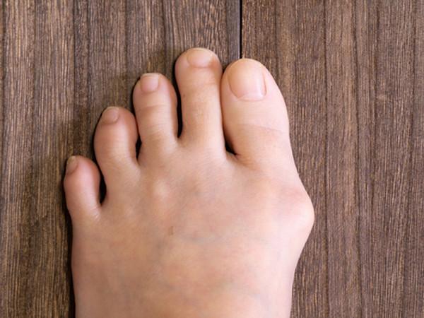外反母趾の原因は足のアーチにあり