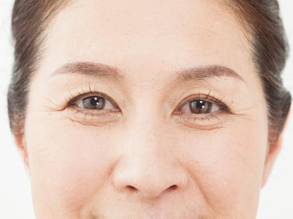 目の下のたるみを解消!生活習慣から見直すケア方法