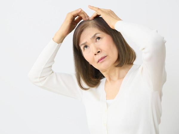 女性の薄毛の原因は?