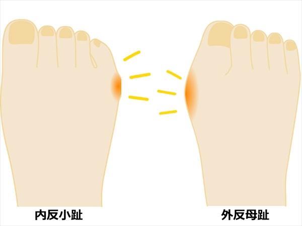 内反小趾とは?原因・症状など外反母趾との違いは?