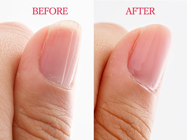 正しい爪の磨き方&縦線対策の方法は?