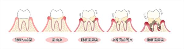 歯周病の初期段階は歯肉炎