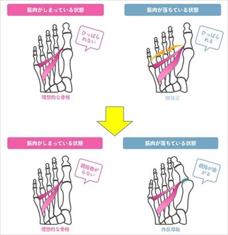 外反母趾の原因
