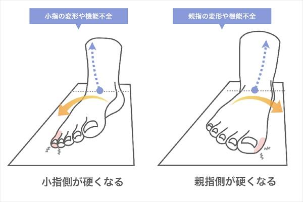 外反母趾や浮き指の人は魚の目やタコができやすい