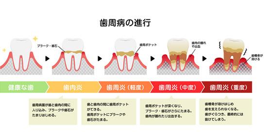 歯周病の症状とは?セルフチェックリスト