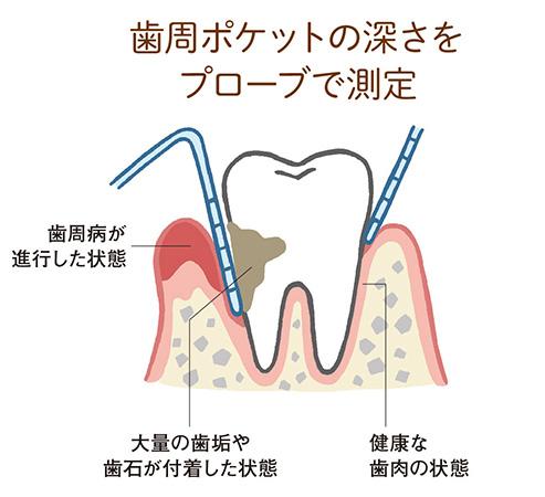 歯周ポケットにプロープを挿入して深さを測る
