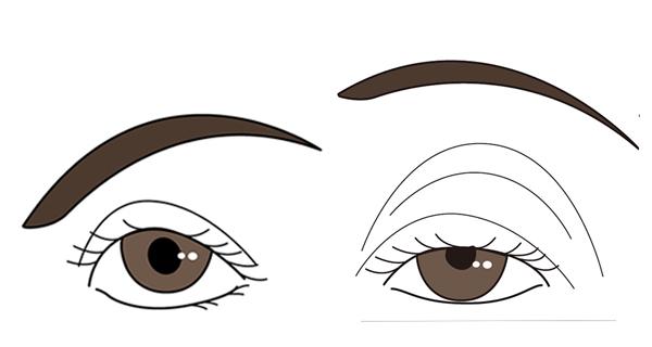 健康な目と眼瞼下垂になった目元の様子