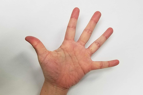 手の指を伸ばすストレッチ方法:親指と小指の最大距離を広げて、指と指の間を開きます