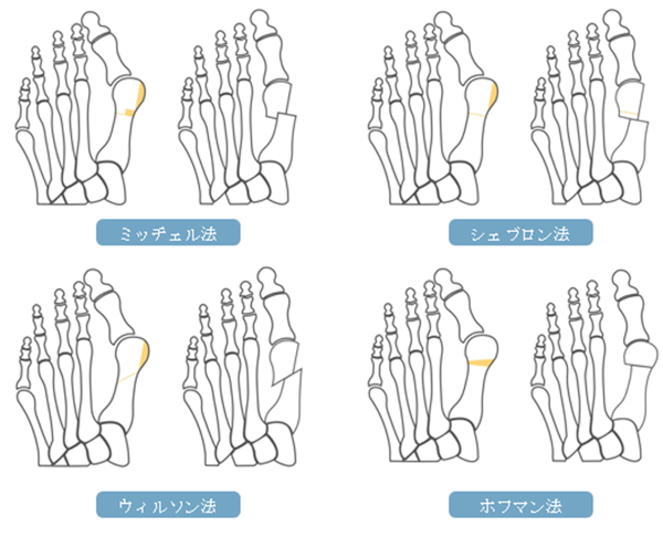 外反母趾の手術の内容:遠位骨切り術