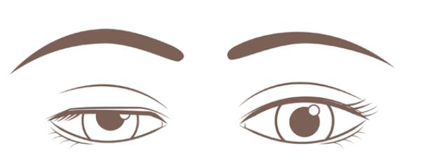 腱膜性眼瞼下垂の場合の目元のイメージ