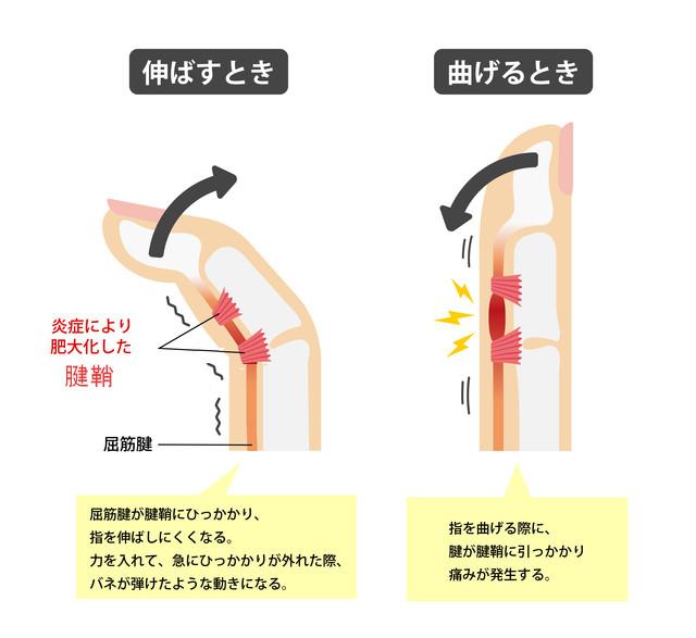 ばね指の症状とは:腱鞘の炎症により腱が引っかかり指が痛む