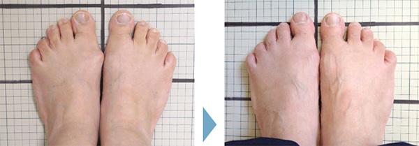 外反母趾の症状改善