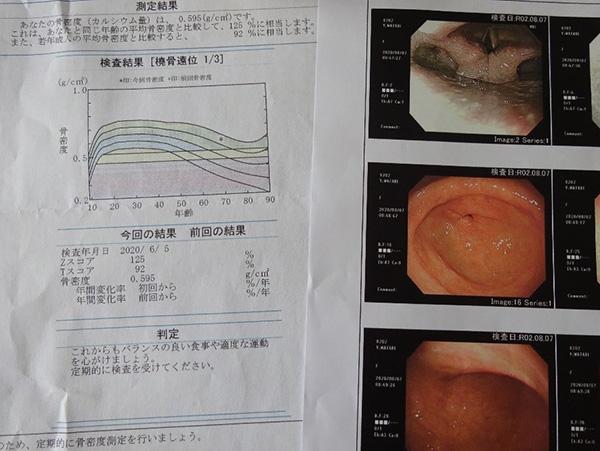 右は胃カメラの画像、左は骨密度測定のグラフ
