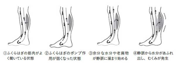 足のむくみが発生する理由