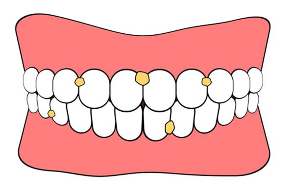 歯周病にかかる原因とは?キスでリスクが高まる