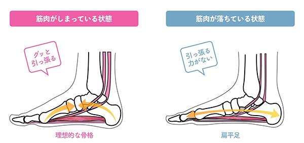 外反母趾の原因:足の筋力低下・偏平足