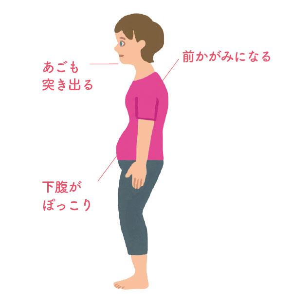 原因1:筋肉が硬く縮む