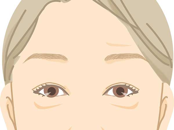 顔の上半身は「まぶたのたるみ、目元のゆるみ、額のシワ」などの悩みあり