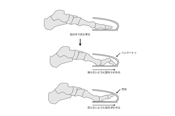 足に合わない靴が筋肉の硬さ、足裏の痛みを引き起こす