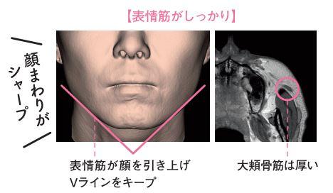 表情筋がしっかりしているハルメク世代の3次元CT画像