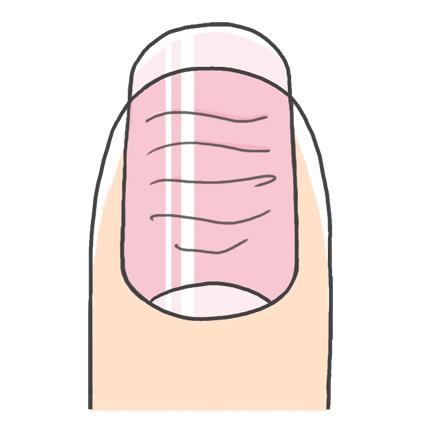 爪の横筋ができた原因