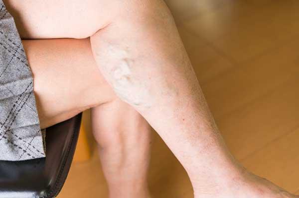下肢静脈瘤とはどんな病気?