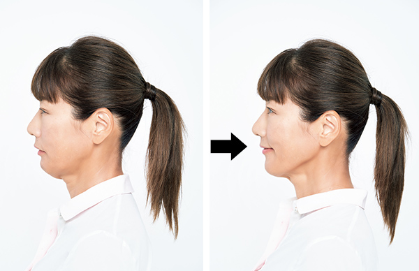 舌の筋肉が衰えるとほうれい線も深くなり輪郭もたるみます