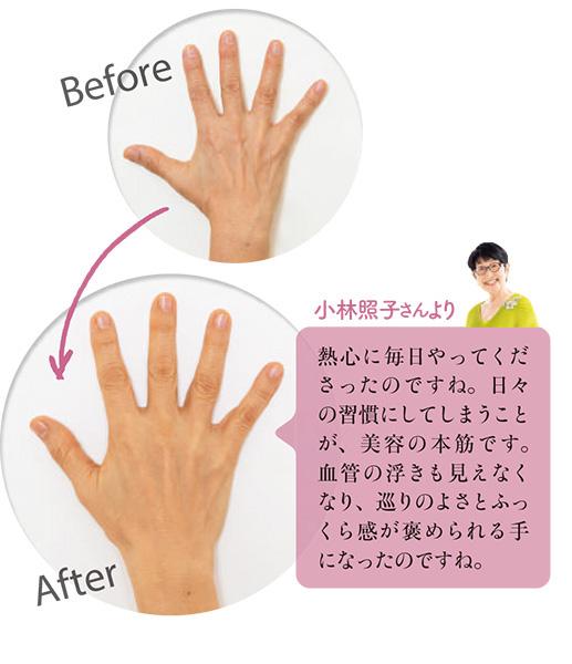 ゴツゴツしていた手が、女性らしくふっくらして、うれしい