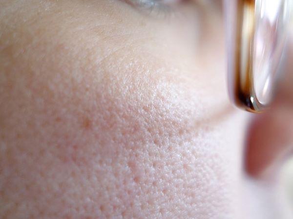 頬の毛穴の開き