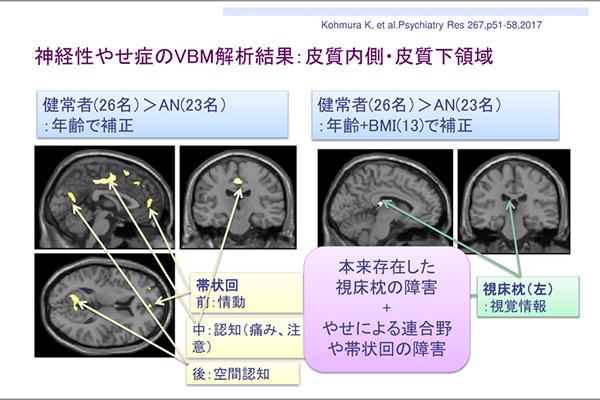 自分のやせ具合が認知できなくなる脳の構造変化