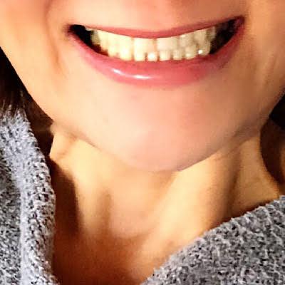 歯と歯を離してリラックス