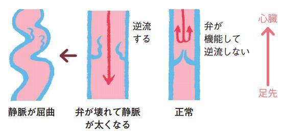 下肢静脈瘤の発生