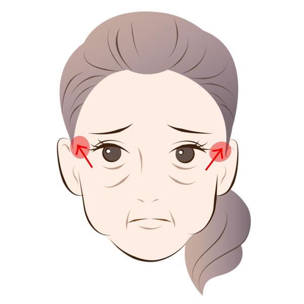 「目の下のたるみ」は骨格上の問題