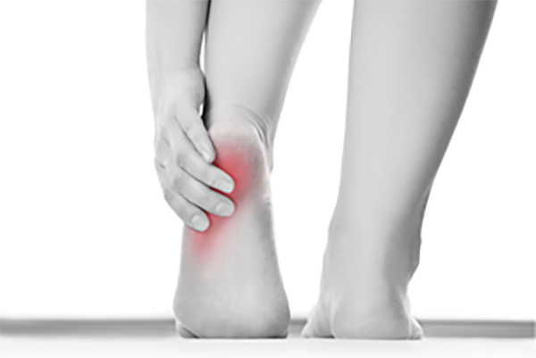 足の裏が痛い原因:足底腱膜炎(足底筋膜炎)