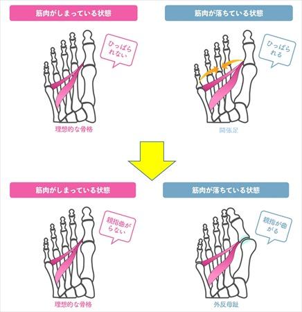 外反母趾の原因:開帳足