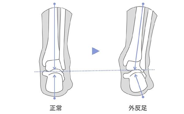 O脚の原因は足の筋力低下!足指ストレッチで改善も
