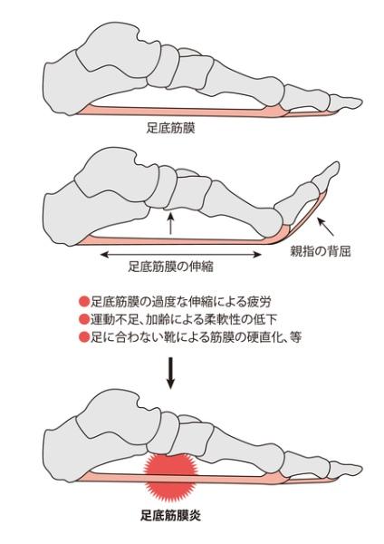 足底腱膜炎(足底筋膜炎)の原因