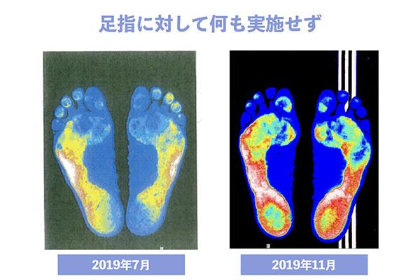 足底圧の画像