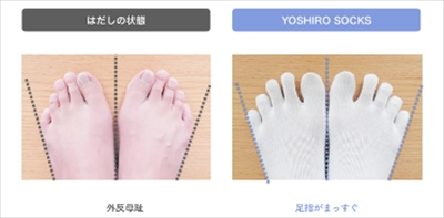 足指矯正ソックス(足指サポーター)の「YOSHIRO SOCKS」