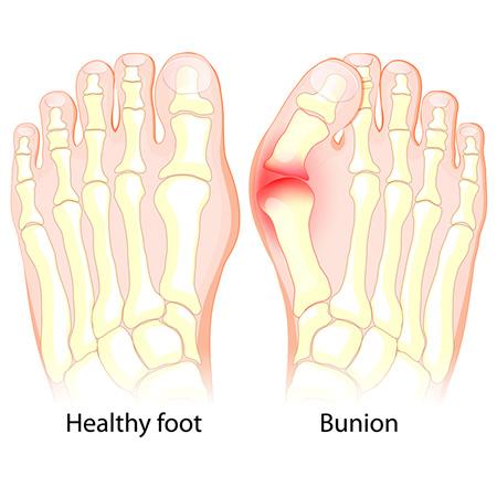 外反母趾の症状の進行