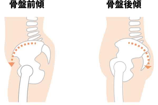 骨盤を整えることは美脚になるための基本