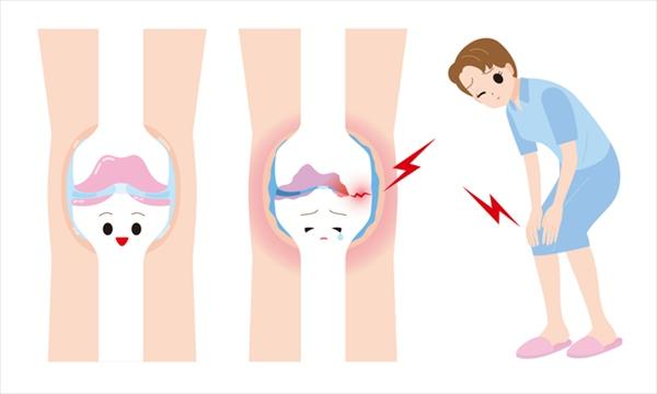 変形性膝関節症の原因は加齢
