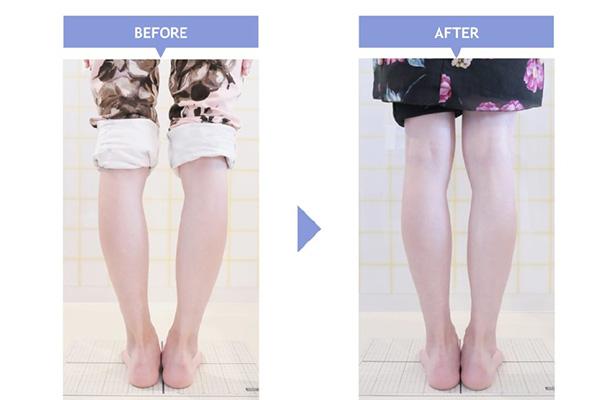 治療開始前と3週間後の写真を比較