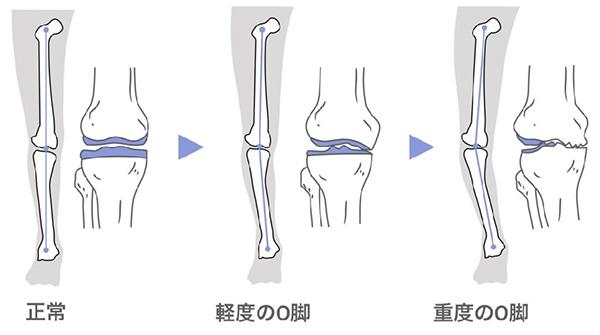 O脚(内反膝、ないはんしつ)の症状