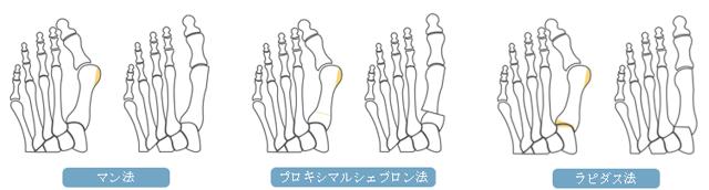 外反母趾の手術の内容:近位骨切り術