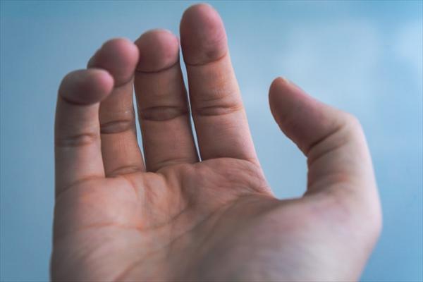ばね指の主な原因は指の使い過ぎ!診断基準は?